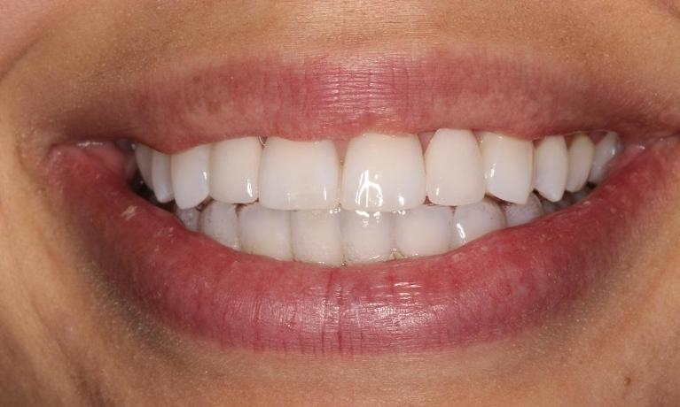 Invisalign-and-Veneers-After-Image