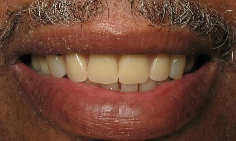 Partial-Denture-After-Image