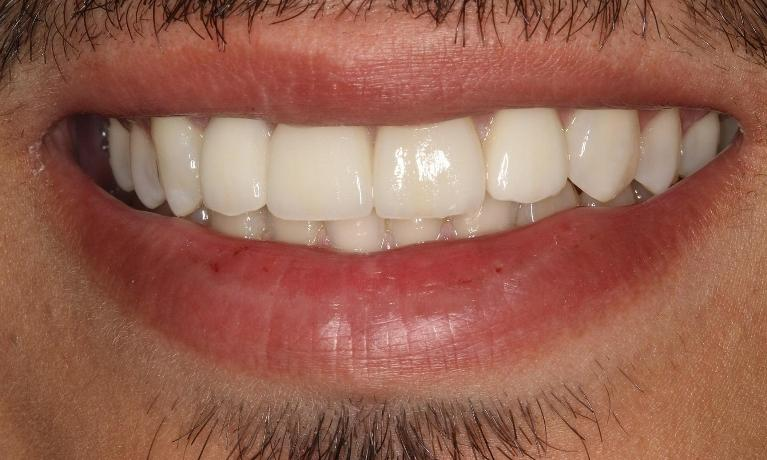 medium_After-Porcelain-Veneers--Crowns.jpg