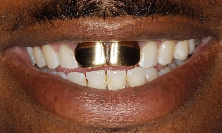 Gold-Removal-Before-Image