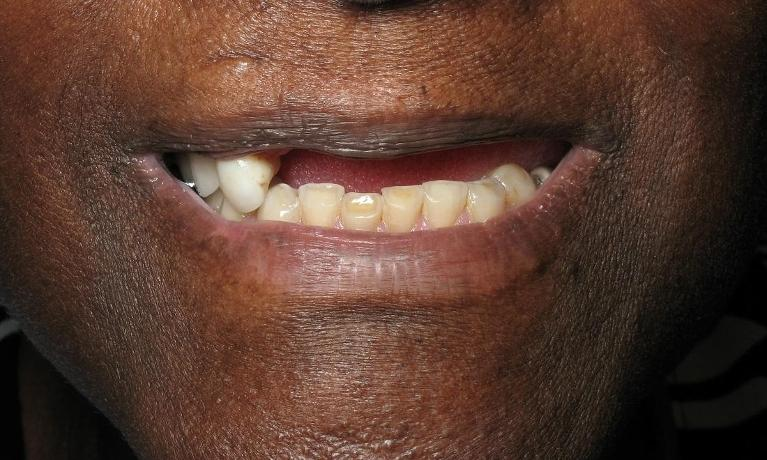 Implant-Denture-Before-Image