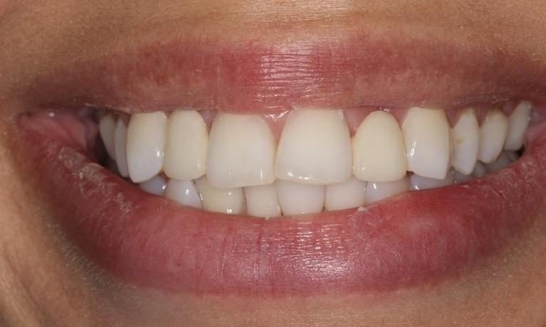 Invisalign-and-Veneers-Before-Image