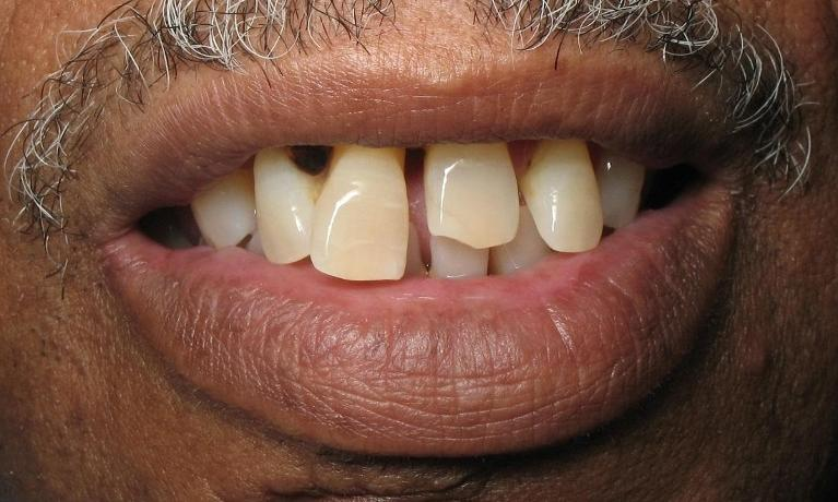Partial-Denture-Before-Image