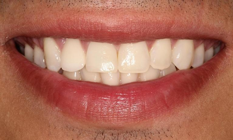 Porcelain-Veneers-Crowns-Before-Image